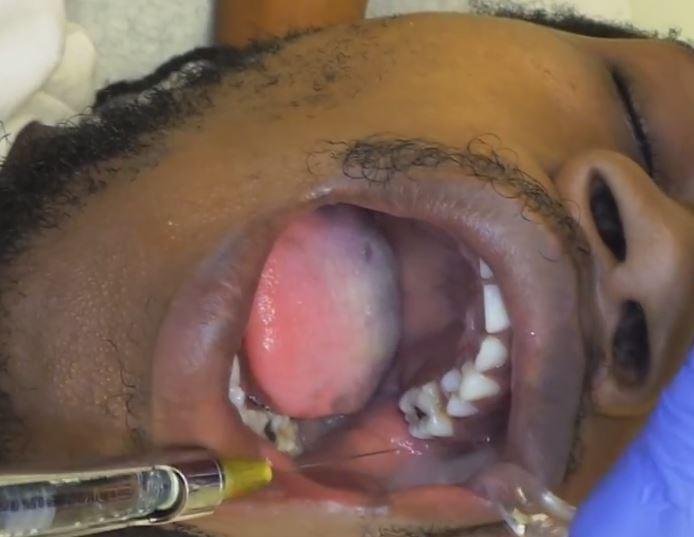 Oral Nerves 15