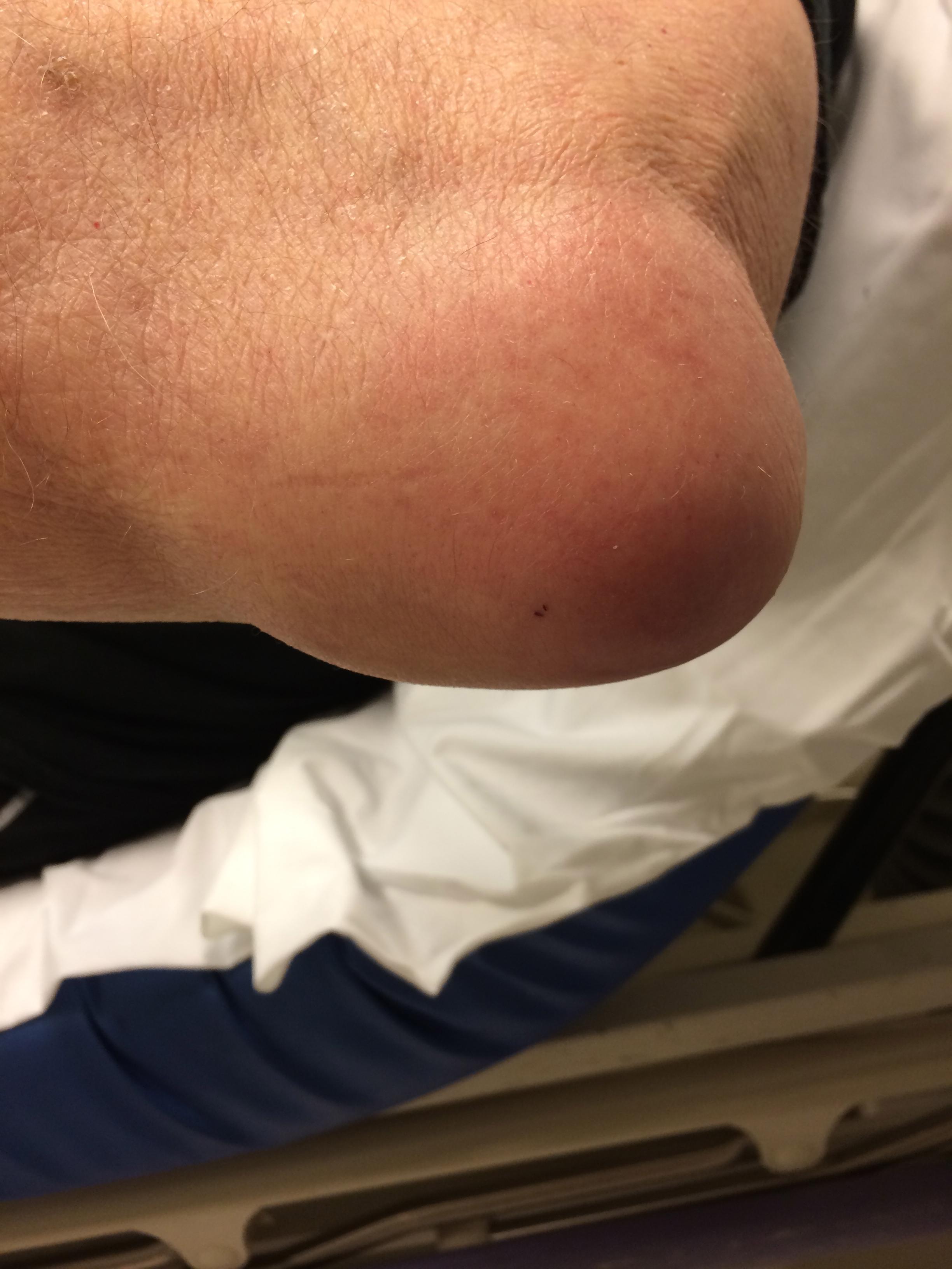 how to avoid bursitis elbow