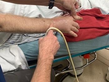 PP-red erythematous rash-carpal bone-wrist-ultrasound-aspiration.jpg