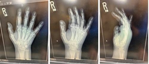 PP-wrist xray-soft tissue swelling-septic arthritis.jpg