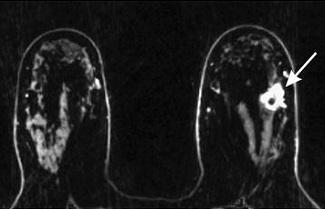 Comprehensive Dynamic Contrast-Enhanced 3D Magnetic Resonance Imaging...