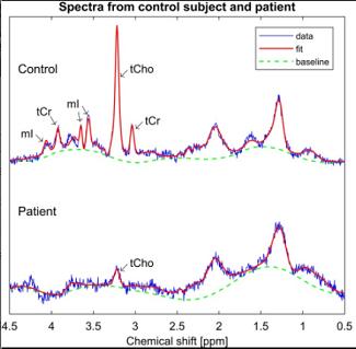 Quantitative Proton Spectroscopy of the Testes at 3 T: Toward a...