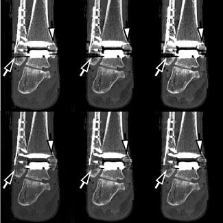 Metal Artifact Reduction Computed Tomography of Arthroplasty Implants:...