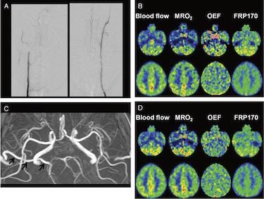 Resolution of Hypoxic Tissue in Cerebellar Hemispheres After Arterial...