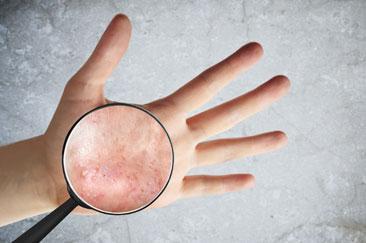 Vesicular hand dermatitis