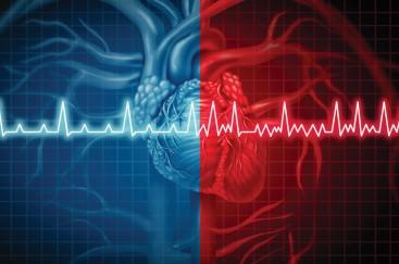 The ABCs of atrial fibrillation